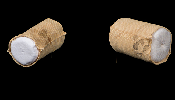 The sleeve cuffs of Dr. Edward Curtis, stained with Lincoln's blood during autopsy.